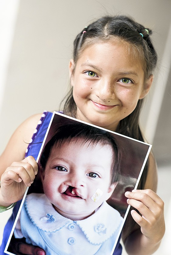 Young girl poses with a picture of her younger self prior to surgery
